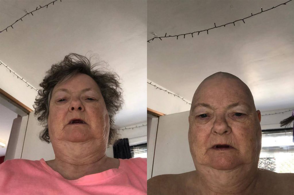 A before and after photo of a woman with shaved head